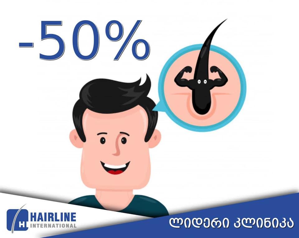 50 პროცენტიანი ფასდაკლება თმის გადანერგვაზე