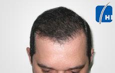 hair transplantation after