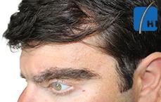 თმის გადანერგვამდე და შემდეგ hair transplant before and after tmis gadanergva result