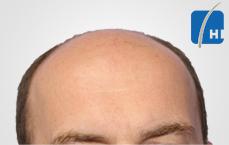 თმის გადანერგვამდე და შემდეგ hair transplant before and after tmis gadanergva