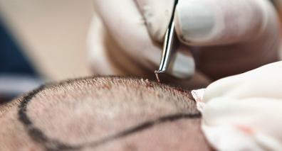 რა უნდა ვიცოდეთ თმის გადანერგვის შესახებ? hair transplant
